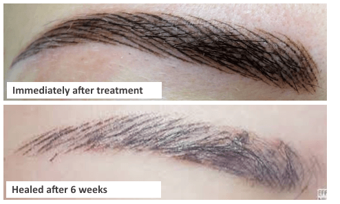 permanent makeup eyebrows kent - Simulated Natural Hair Definition