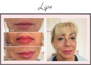 Permanent Makeup Portfolio Lips Mel